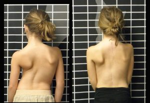 Early Onset Scoliosis Case