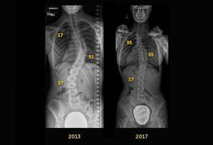 Scoliosis Case