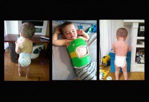Scoliosis Casting - Bracing