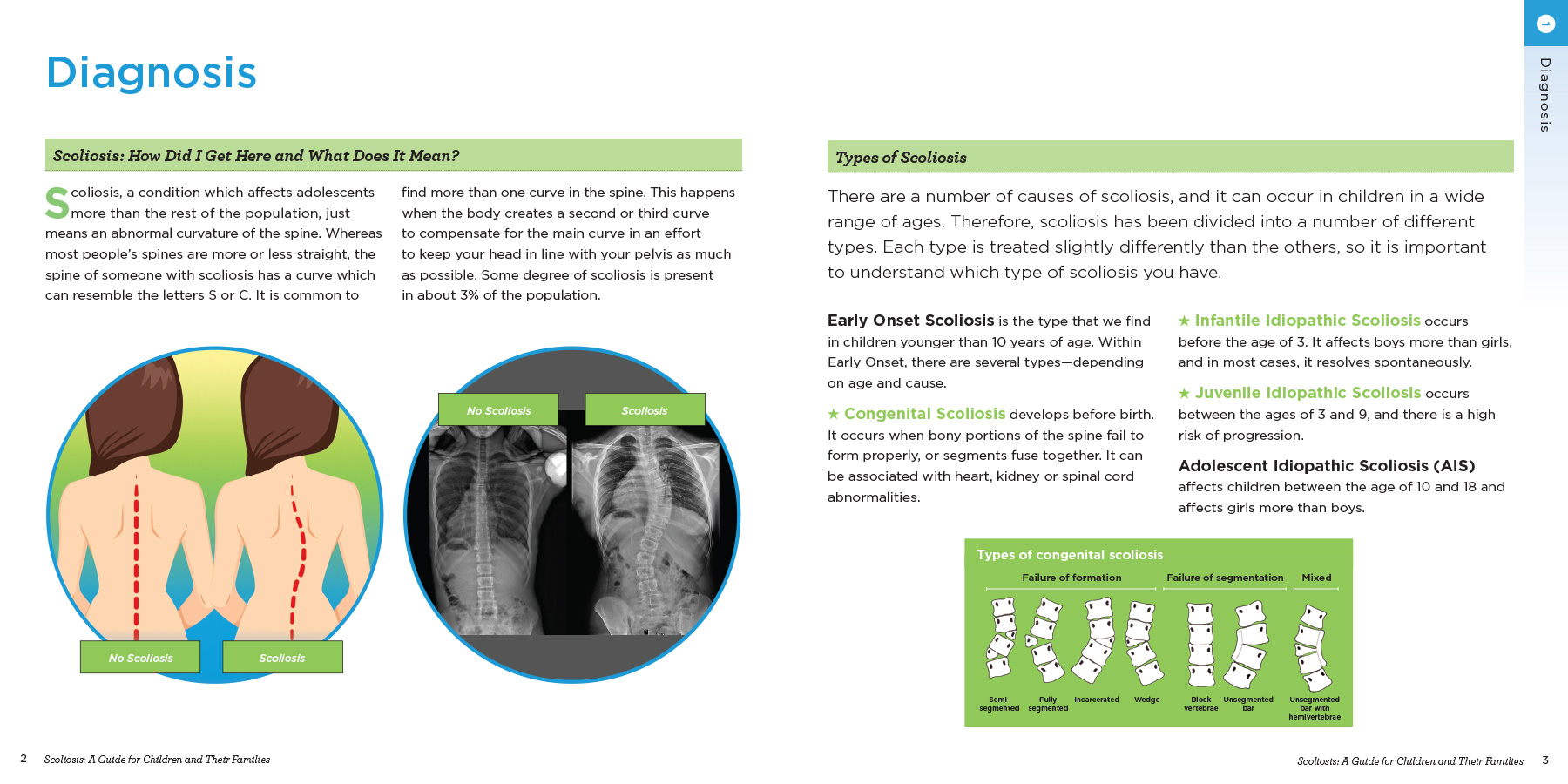 Scoliosis-A Guide for Children and Their Families - Chapter 1 - Spread 2