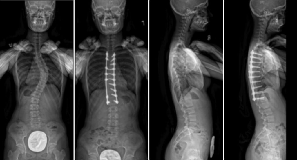 Commonly-Performed-Scoliosis-Surgeries-1AN