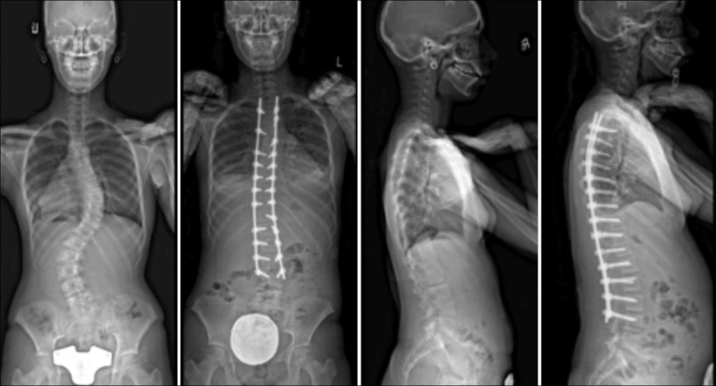 Commonly-Performed-Scoliosis-Surgeries-1CN