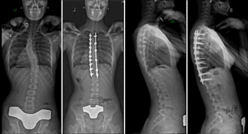 Commonly-Performed-Scoliosis-Surgeries-2AN