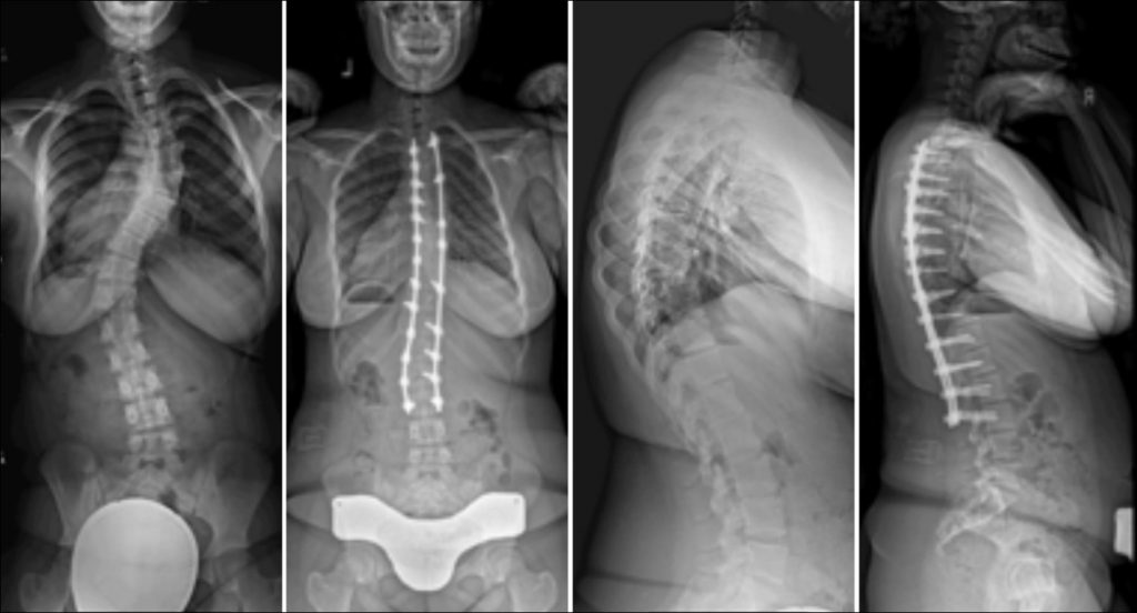 Commonly-Performed-Scoliosis-Surgeries-3A+