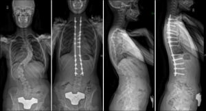 Commonly-Performed-Scoliosis-Surgeries-3C+