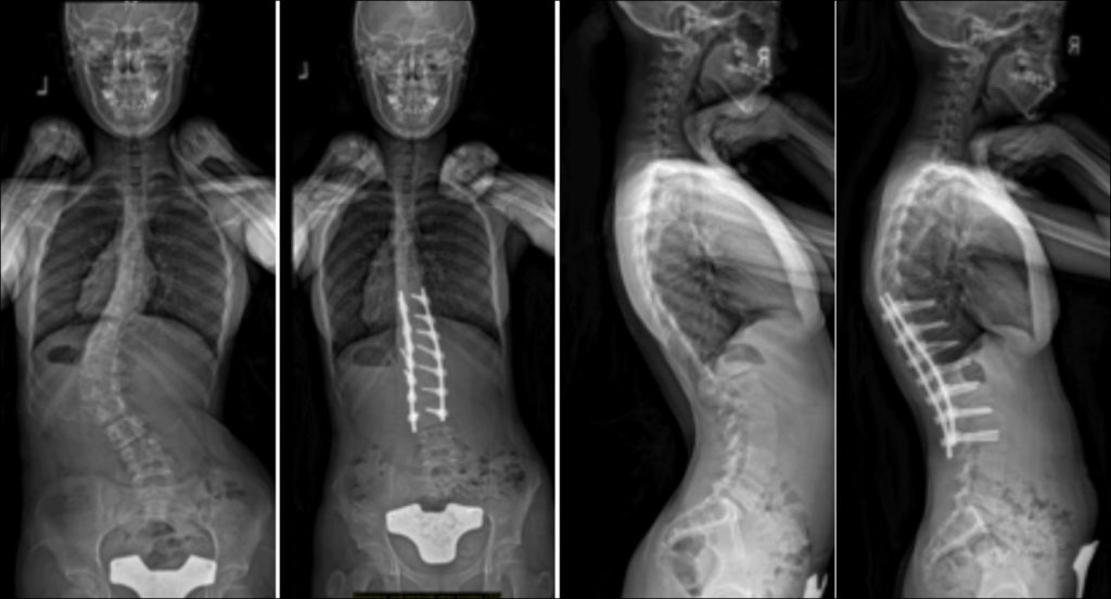 Commonly-Performed-Scoliosis-Surgeries-5CN
