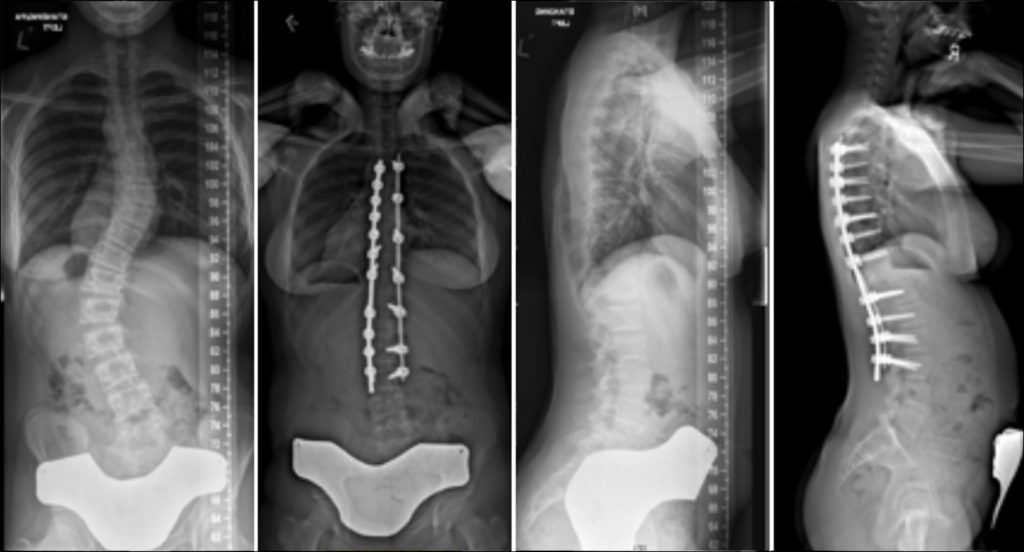 Commonly-Performed-Scoliosis-Surgeries-6CN