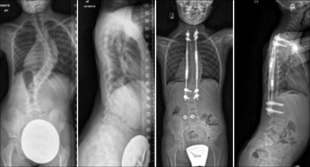 Commonly-Performed-Scoliosis-Surgeries-MAGEC-Screw