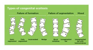 Congenital Scoliosis Types Picture-Diagram