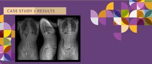 Scoliosis AVBT-Tethering-Case Study