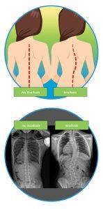 Scoliosis v Normal Spine-Diagram