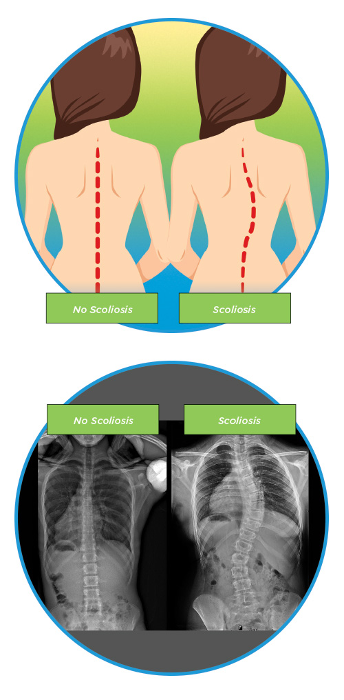 Scoliosis v Normal Spine-Diagram